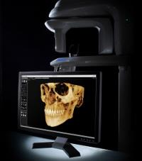 A monitor displaying dental scans of skull with teeth